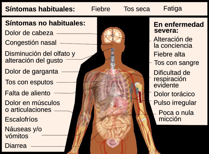 cuadro de síntomas de COVID-19
